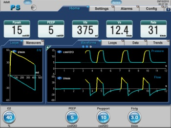 eVent Medical | Non-Invasive Ventilation Monitoring